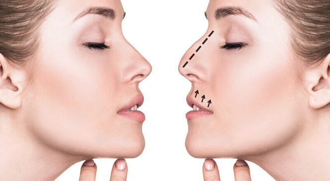 Increase Your Confidence with a Natural-Looking Nose Surgery